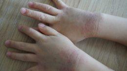 アトピー 皮膚炎